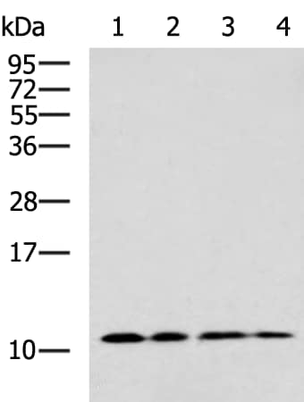 Western blot - Anti-TARC/CCL17 antibody (ab182793)
