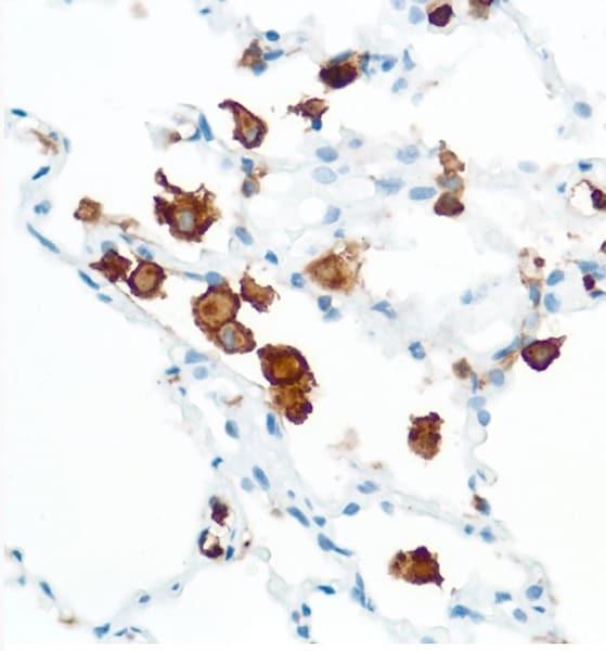Immunohistochemistry (Formalin/PFA-fixed paraffin-embedded sections) - Anti-CD16 antibody [SP175] (ab183354)