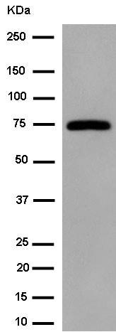 Western blot - Anti-Dcp1a antibody [EPR13822] (ab183709)