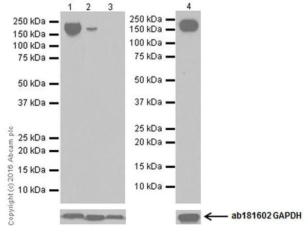 Western blot - Anti-CD11b antibody [EPR19387] (ab184308)