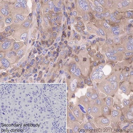 Immunohistochemistry (Formalin/PFA-fixed paraffin-embedded sections) - Anti-CDC42 antibody [EPR15620] (ab187643)