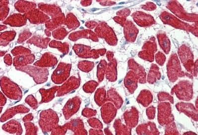 Immunohistochemistry (Formalin/PFA-fixed paraffin-embedded sections) - Anti-Cardiac Troponin I antibody - N-terminal (ab188877)