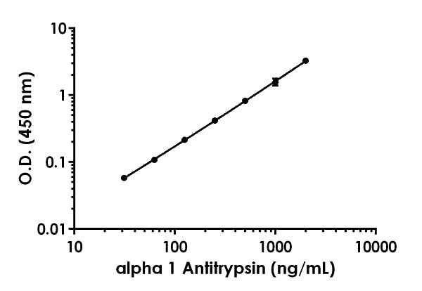 Example of alpha 1 Antitrypsin standard curve.