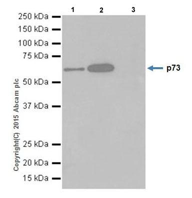 Immunoprecipitation - Anti-p73 antibody [EPR18409(T)(MIX)] (ab189896)
