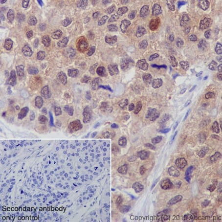 Immunohistochemistry (Formalin/PFA-fixed paraffin-embedded sections) - Anti-p73 antibody [EPR18409(T)(MIX)] (ab189896)