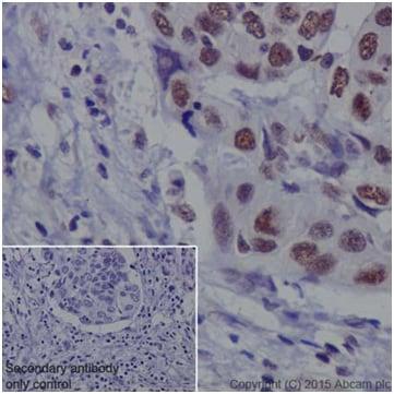 Immunohistochemistry (Formalin/PFA-fixed paraffin-embedded sections) - Anti-METTL3 antibody [EPR18810] (ab195352)