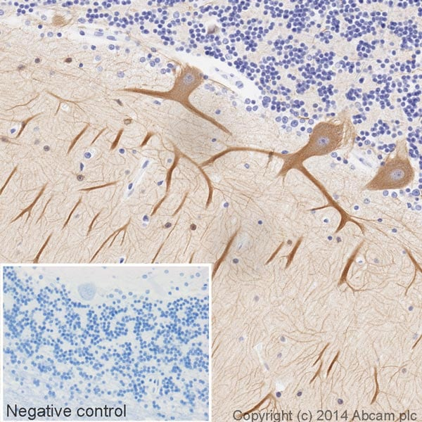 Immunohistochemistry (Formalin/PFA-fixed paraffin-embedded sections) - Anti-beta III Tubulin antibody [2G10] (HRP) (ab196638)