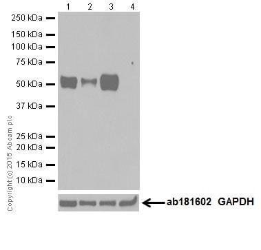 Western blot - Anti-MEF2A + MEF2C antibody [EPR19089-34] (ab197070)