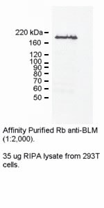 Western blot - Anti-Blooms Syndrome Protein Blm antibody (ab2179)