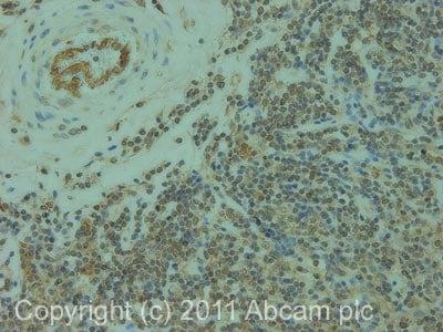 Immunohistochemistry (Formalin/PFA-fixed paraffin-embedded sections) - Anti-ELMO1 antibody (ab2239)