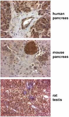 Immunohistochemistry (Formalin/PFA-fixed paraffin-embedded sections) - Anti-Paxillin antibody (ab2264)