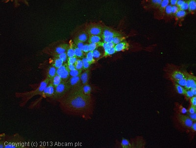 Immunocytochemistry/ Immunofluorescence - Anti-VEGF Receptor 1 antibody (ab2350)
