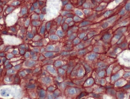 Immunohistochemistry (Formalin/PFA-fixed paraffin-embedded sections) - Anti-beta Catenin antibody (ab2365)