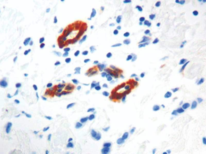 Immunohistochemistry (Formalin/PFA-fixed paraffin-embedded sections) - Anti-Transglutaminase 2 antibody [CUB 7402] (ab2386)