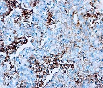 Immunohistochemistry (Formalin/PFA-fixed paraffin-embedded sections) - Anti-Human Serum Albumin antibody (ab2406)