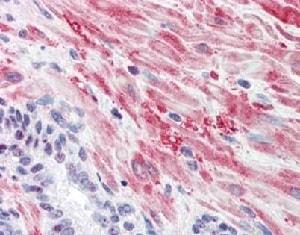 Immunohistochemistry (Formalin/PFA-fixed paraffin-embedded sections) - Anti-Glycogen synthase 1/GYS1 (phospho S640) antibody (ab2479)
