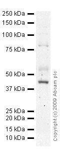 Western blot - Anti-CD105 antibody [MEM-226] (ab2529)