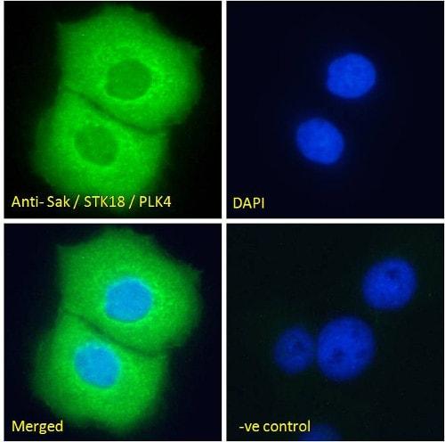Immunocytochemistry/ Immunofluorescence - Anti-PLK4 antibody (ab2642)