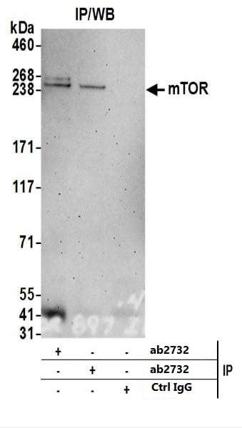 Immunoprecipitation - Anti-mTOR antibody (ab2732)