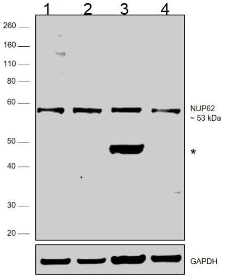 Western blot - Anti-Nuclear Pore O-Linked Glycoprotein antibody [RL1] (ab2734)