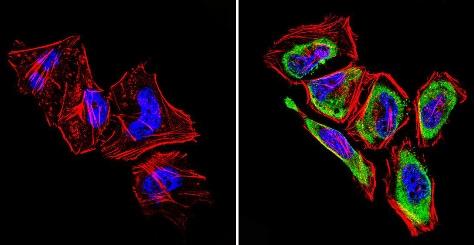 Immunocytochemistry/ Immunofluorescence - Anti-GRK1 antibody [D11] (ab2776)