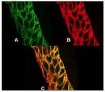 Immunocytochemistry - Anti-Calcium Pump PMCA4 ATPase antibody [JA9] (ab2783)