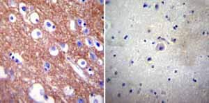 Immunohistochemistry (Formalin/PFA-fixed paraffin-embedded sections) - Anti-Calcium Pump PMCA4 ATPase antibody [JA9] (ab2783)