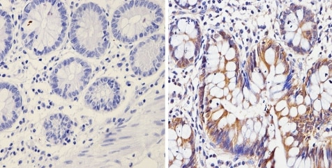Immunohistochemistry (Formalin/PFA-fixed paraffin-embedded sections) - Anti-Galectin 3 antibody [A3A12] (ab2785)