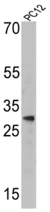 Western blot - Anti-Endothelin 1 antibody [TR.ET.48.5] (ab2786)