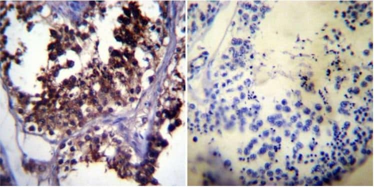 Immunohistochemistry (Formalin/PFA-fixed paraffin-embedded sections) - Anti-Hsp70 antibody [5A5] (ab2787)
