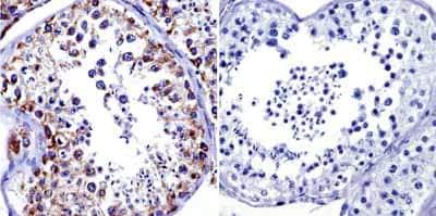 Immunohistochemistry (Formalin/PFA-fixed paraffin-embedded sections) - Anti-Grp75/MOT antibody [JG1] (ab2799)