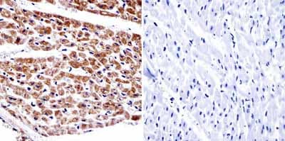 Immunohistochemistry (Formalin/PFA-fixed paraffin-embedded sections) - Anti-alpha Adaptin antibody [AC1-M11] (ab2807)