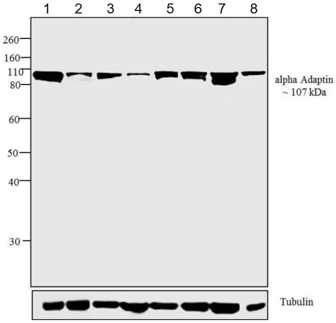 Western blot - Anti-alpha Adaptin antibody [AC1-M11] (ab2807)