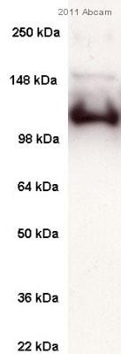 Western blot - Anti-SERCA1 ATPase antibody [VE121G9] (ab2819)