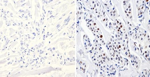 Immunohistochemistry (Formalin/PFA-fixed paraffin-embedded sections) - Anti-Dnmt3b antibody (ab2851)