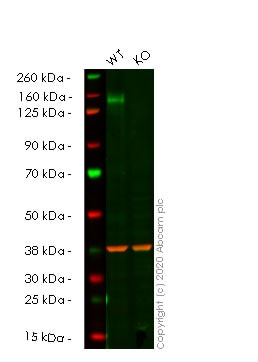 Western blot - Anti-Calcium channel L type DHPR alpha 2 subunit/CACNA2D1 antibody [20A] (ab2864)