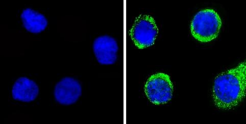 Immunocytochemistry/ Immunofluorescence - Anti-Angiostatin antibody (ab2904)