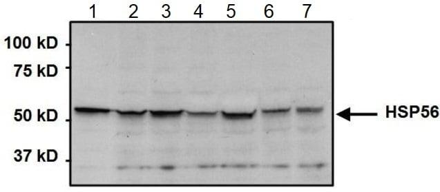 Western blot - Anti-FKBP52 antibody (ab2926)