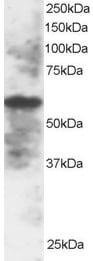 Western blot - Anti-IRF5 antibody (ab2932)