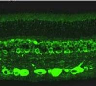 Immunohistochemistry (Formalin/PFA-fixed paraffin-embedded sections) - Anti-RanBP2 antibody (ab2938)