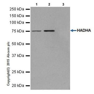 Immunoprecipitation - Anti-HADHA antibody [EPR17940] (ab203114)