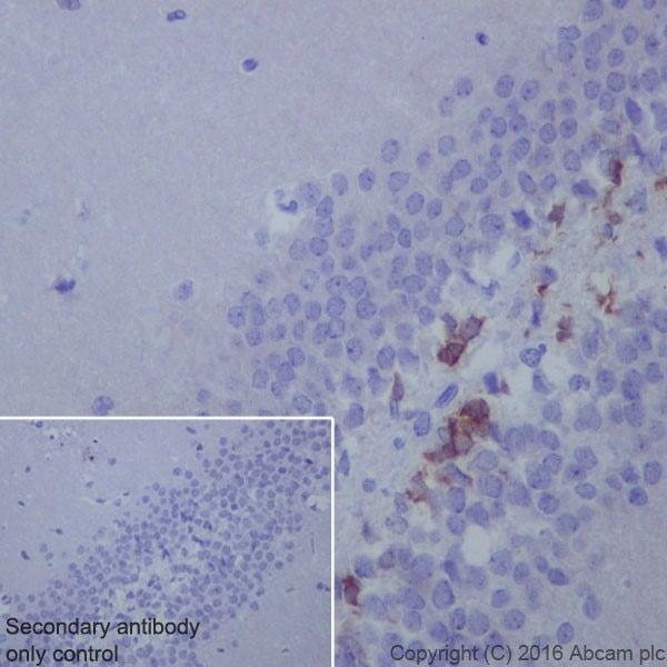 Immunohistochemistry (Formalin/PFA-fixed paraffin-embedded sections) - Anti-Doublecortin antibody [EPR19997] (ab207175)