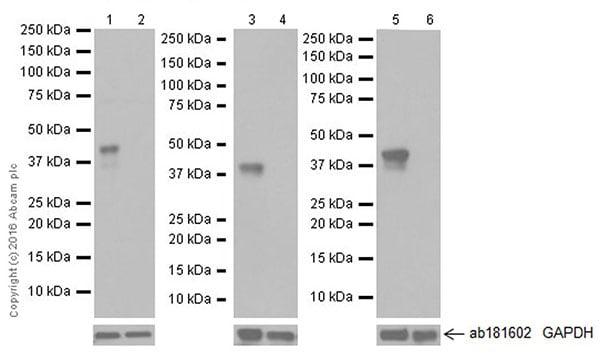 Western blot - Anti-Doublecortin antibody [EPR19997] (ab207175)