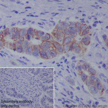 Immunohistochemistry (Formalin/PFA-fixed paraffin-embedded sections) - Anti-L1CAM antibody [EPR18750] (ab208155)