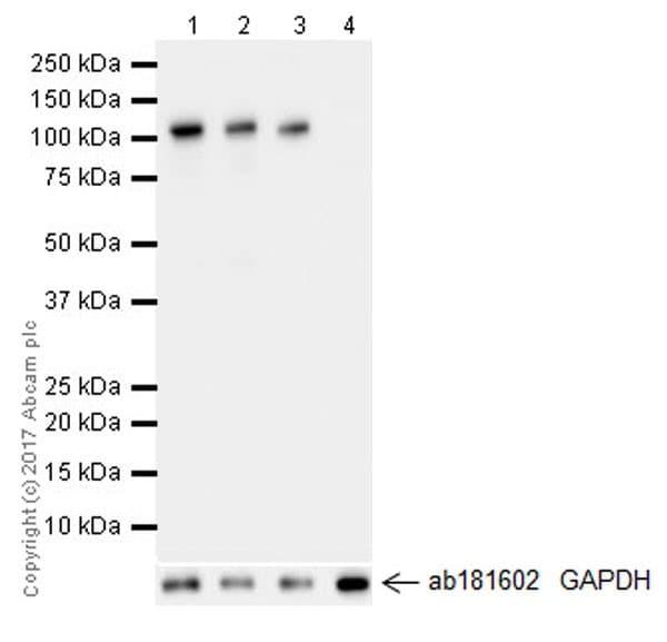 Western blot - Anti-Hexokinase II antibody [EPR20839] (ab209847)