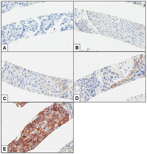 Immunohistochemistry (Formalin/PFA-fixed paraffin-embedded sections) - Anti-PD-L1 antibody [28-8] - Low endotoxin, Azide free (ab209889)