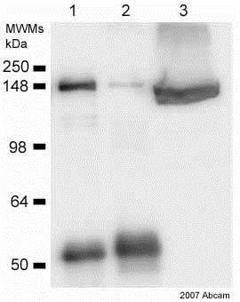Immunoprecipitation - Anti-Clathrin heavy chain antibody (ab21679)