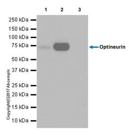 Immunoprecipitation - Anti-Optineurin antibody [EPR20654] (ab213556)