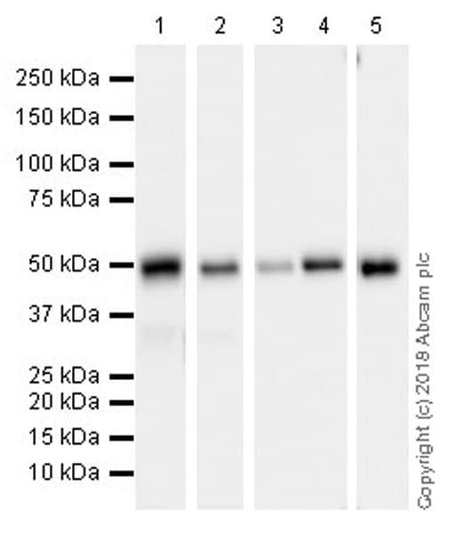 Western blot - Anti-ABAT/GABA-T antibody [EPR20842] (ab216465)