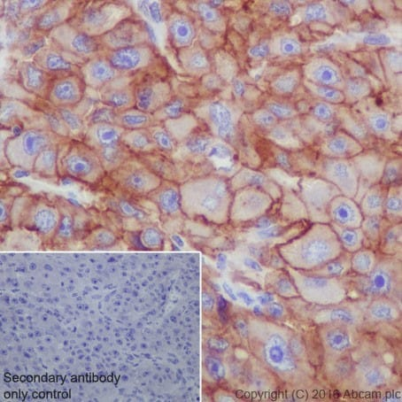 Immunohistochemistry (Formalin/PFA-fixed paraffin-embedded sections) - Anti-Scavenging Receptor SR-BI antibody [EPR20190] (ab217318)